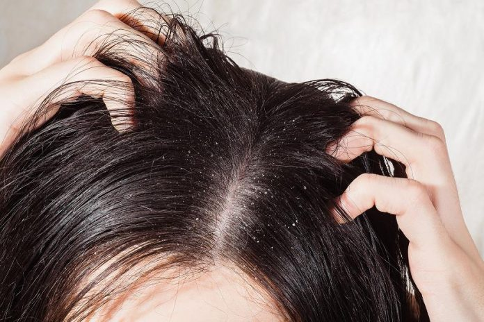 Dandruff causes itching onscalp