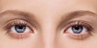 Eyes with puffy bags