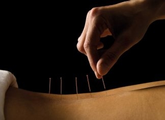 acupuncture needles on the back