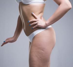 Are you suffering from cellulite?Don't worry- Here's the solution